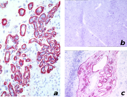 Human glioblastoma stained with the mAb BC1 (a) and zoomed (c). In (b), normal brain stained with the mAb BC-1